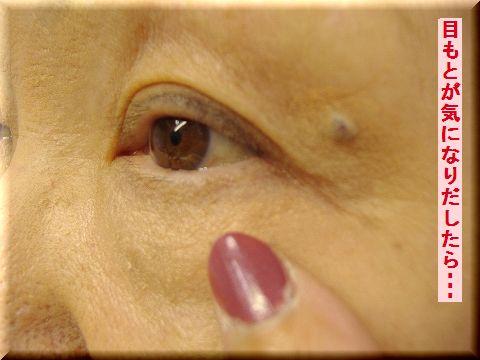 アイケア,目袋クマ,たるみ,目もとが気になりだしたら,アイケア,目袋クマ,たるみ